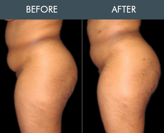 Naturalfill Buttocks Enhancement Results