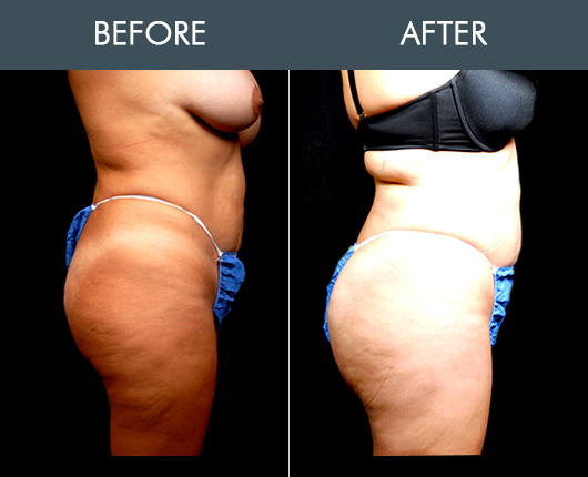 Before & After Naturalfill Buttocks Enhancement