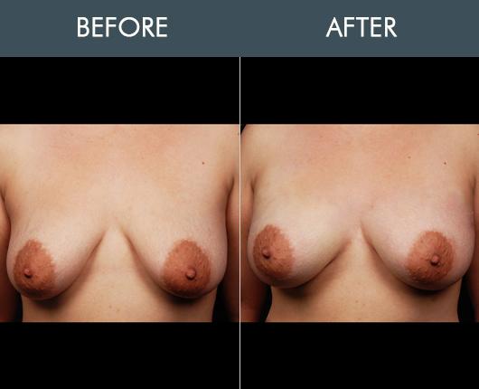 Naturalfill Breast Enhancement Results