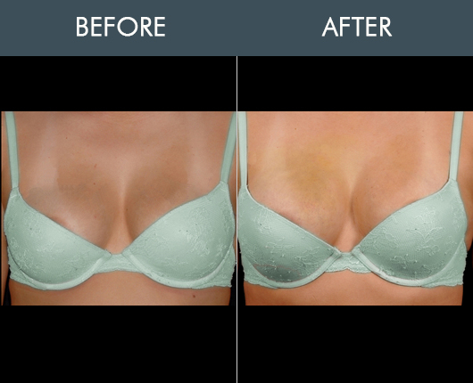 Before And After Naturalfill Breast Enhancement