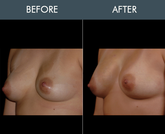Before & After Naturalfill Breast Enhancement