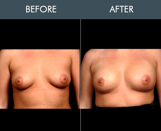 Before And After Naturalfill Breast