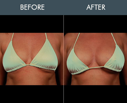 Before & After Naturalfill Breast