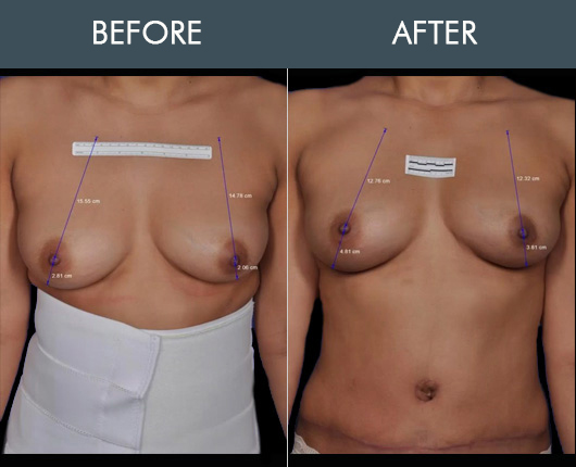 Thermibreast Before & After