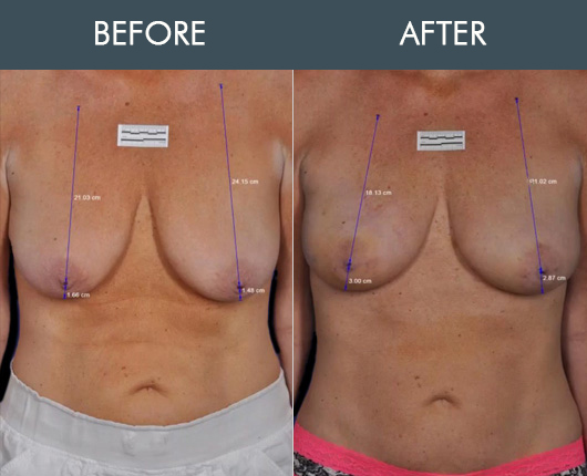 Thermibreast Results