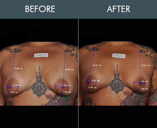 Before And After Thermibreast