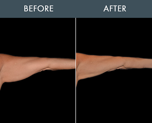 Bodytite Surgery For Arms Results
