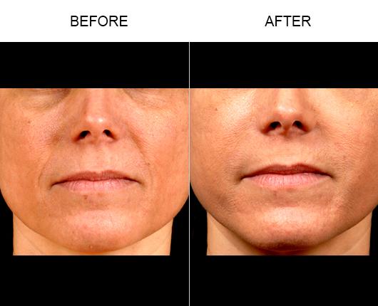 Naturalfill Facial Filler Results