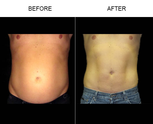 Smartlipo Before And After
