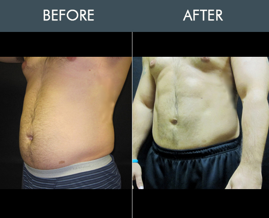 Before And After Smartlipo