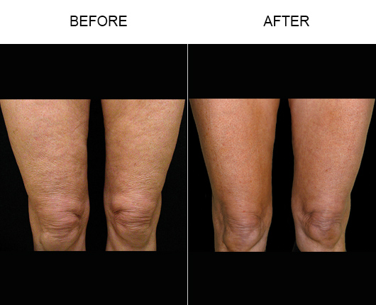 Thermage Orlando | Non Surgical Body Sculpting Florida