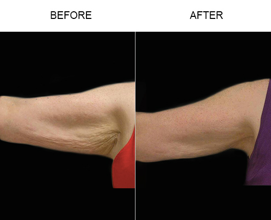 Thermage Body Results