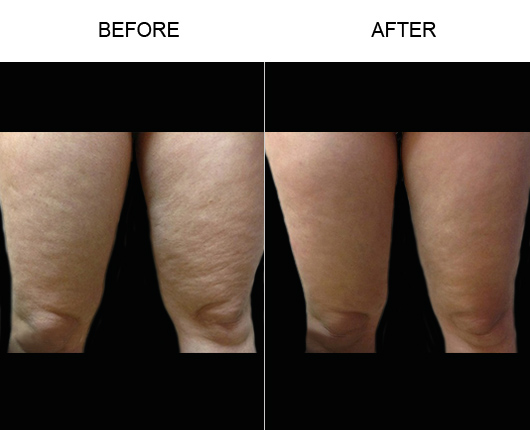 Before & After Bodytite